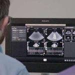 Saúde adquire novo aparelho de ultrassonografia